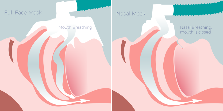 Full Face CPAP Mask and Nasla CPAP Mask