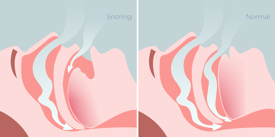 Snoring and normal airway